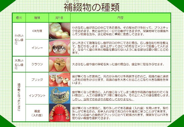 補填物の種類